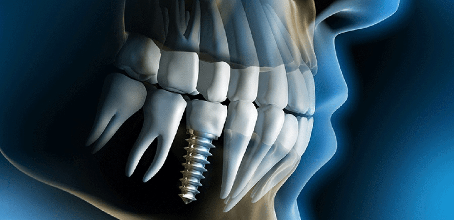 Implants Procedures
