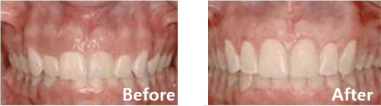 Gummy Smile Procedure (Non-1 Day Procedure)
