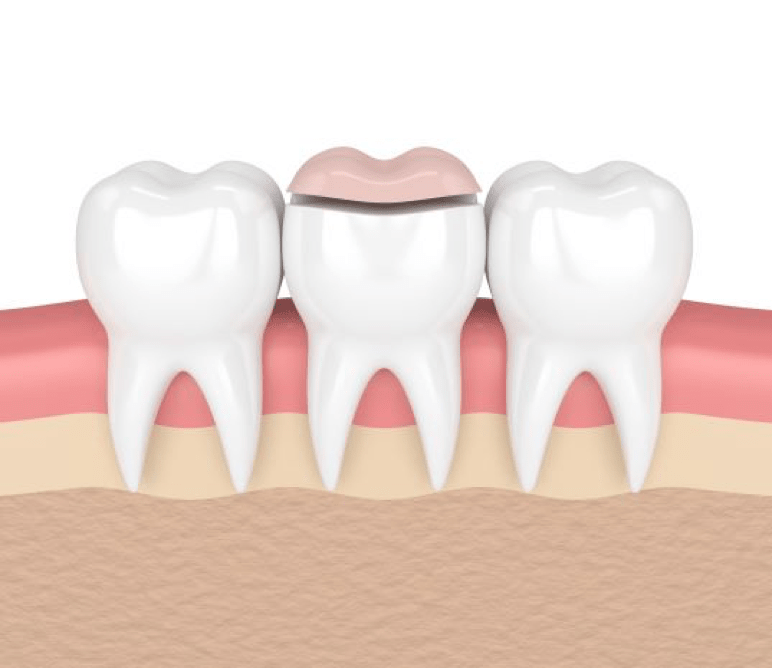 Crowns and Fillings